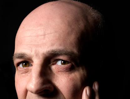 Balding man by Carl Batson