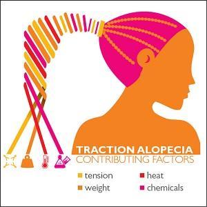 Traction Alopecia by Johns Hopkins Medicine