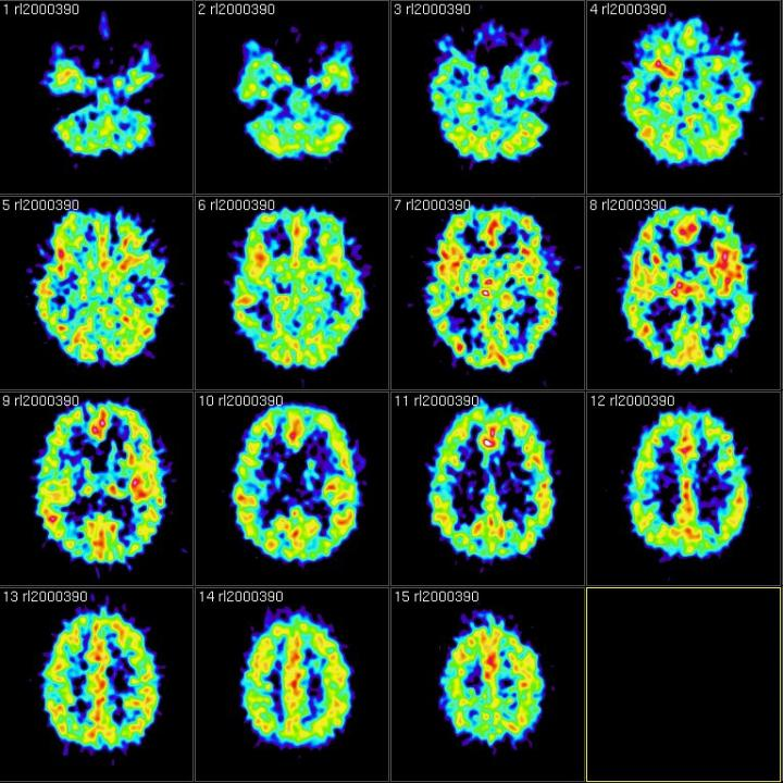 Brainscans showing intentional forgetting